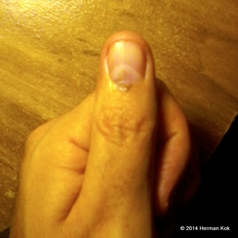 Marked thumb after voting
